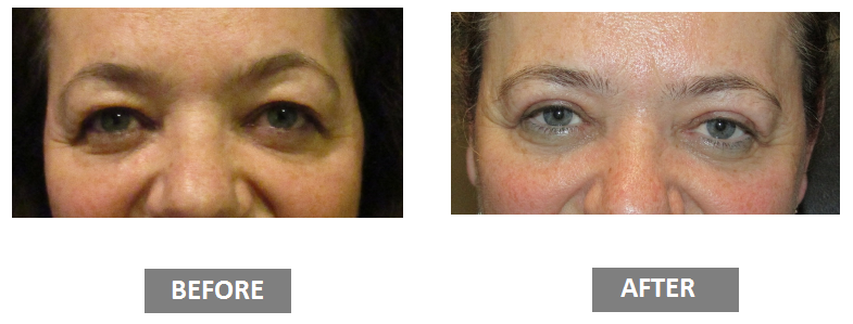 Blepharoplasty before and after photos of woman-2