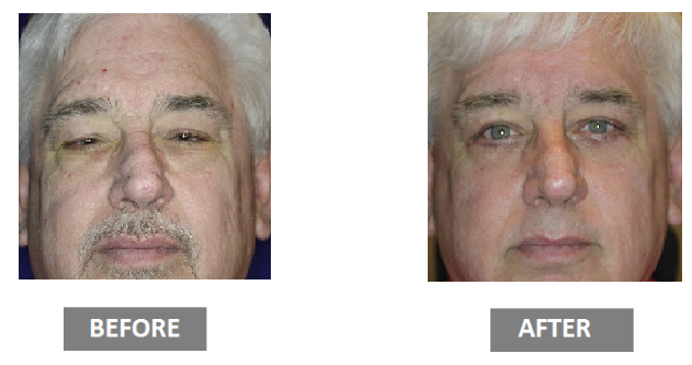 Blepharoplasty before and after photos of man
