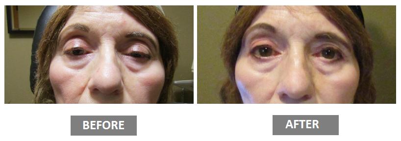 Ptosis repair or droopy eyelid